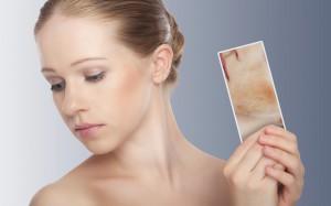 Pelle e psoriasi: 90% pazienti soffre di stress e peggiora malattia
