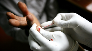 Hiv, il test per l'autodiagnosi in farmacia senza ricetta