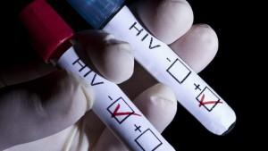HIV - Epatite C: in Italia 20mila coinfetti. A luglio la campagna