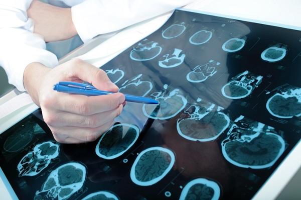 Epilessia, una risonanza magnetica del cervello