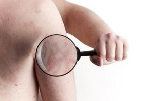Psoriasi, non solo un problema di pelle