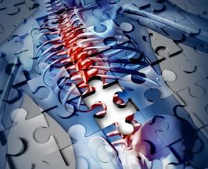 Osteoporosi, il corpo di una donna rappresentato in un puzzle