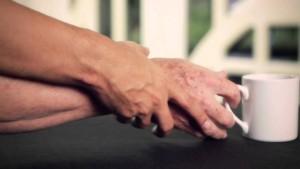 Parkinson, una mano tremante