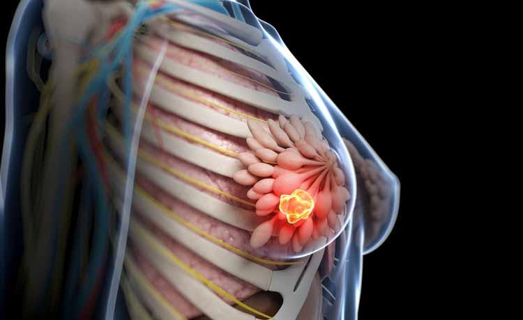 Carcinoma mammario metastatico