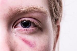 Il virus negli occhi