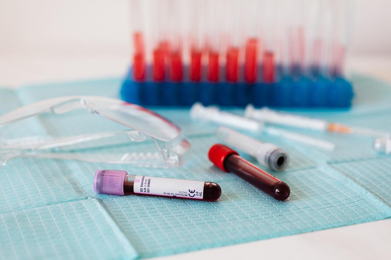 anticorpi anti-Covid