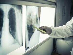 tumore-al-polmone-prima-terapia-orale-alternativa-alla-chemioterapia-1200-900