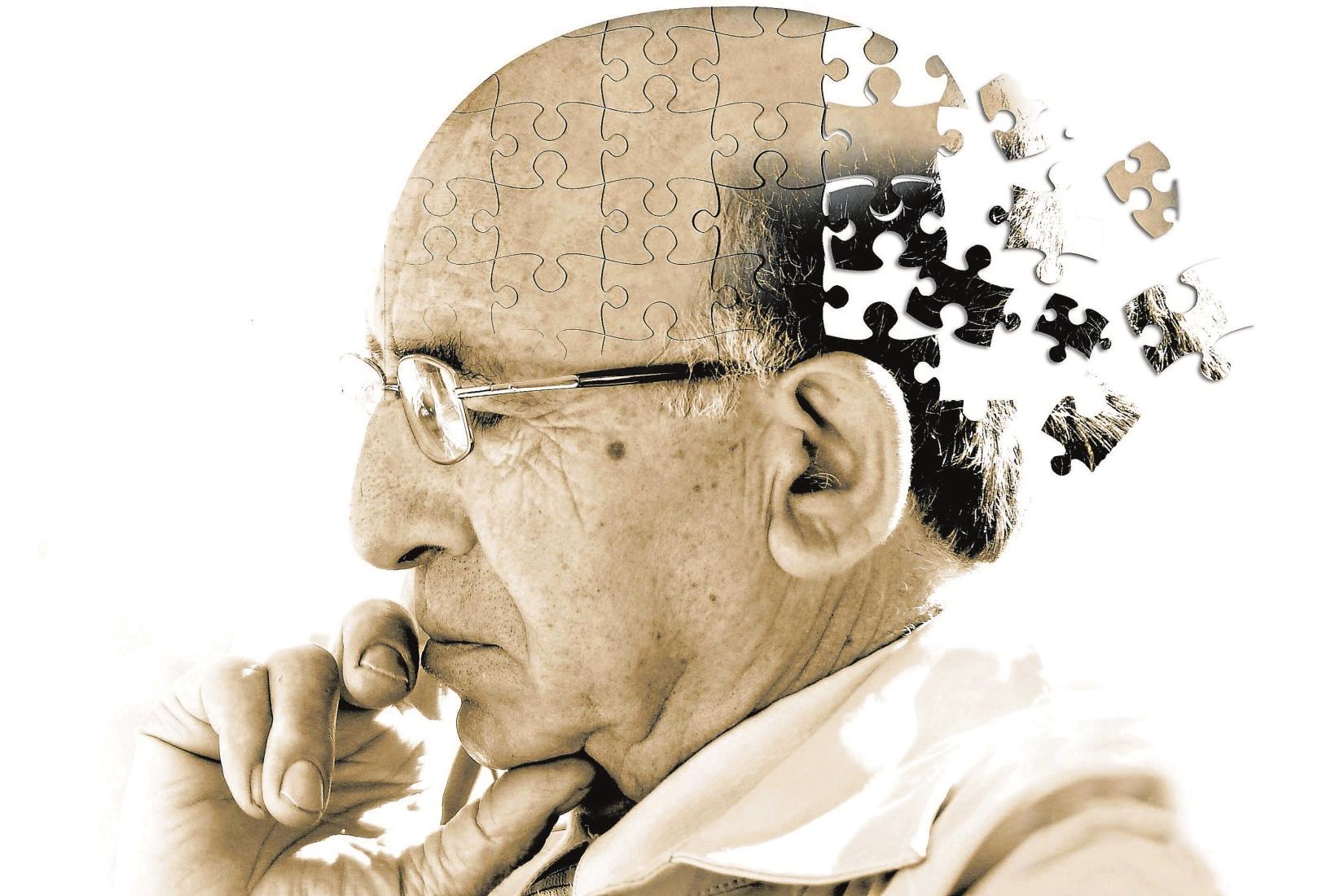 Alzheimer, l'immagine della testa di un uomo che come in un puzzle perde pezzi