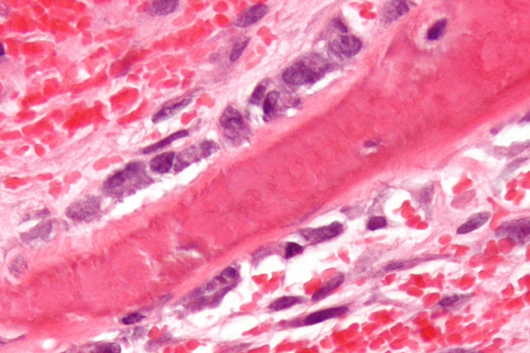 Osteoporosi. Senza cure adeguate 8 su 10. Mortalità uomini più alta