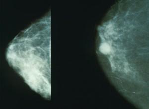 mammella con tumore